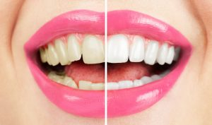 Custom whitening trays fit comfortably and snugly over teeth.