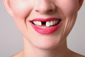 Dental implants can fix missing teeth for good.