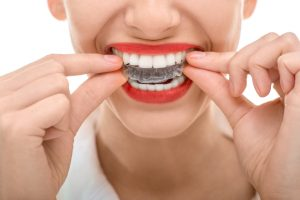 Here are the top questions to ask your dentist about Invisalign in 76123.