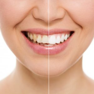 before and after results of teeth whitening
