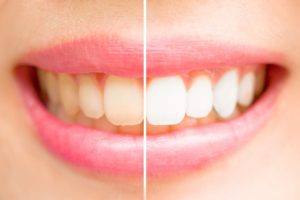 teeth-whitening-crazy-solutions